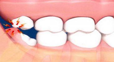 yirmilik diş ağrısı